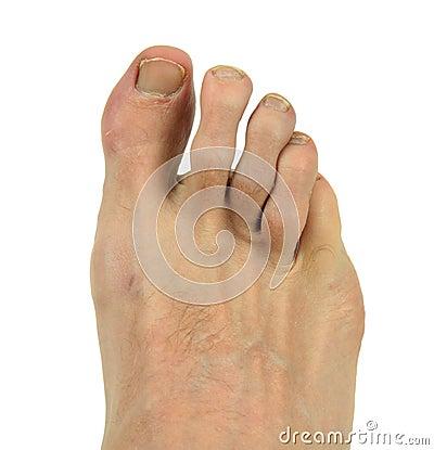 Man s Foot