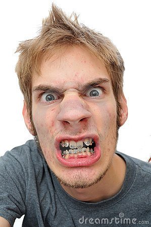 Man showing his braces