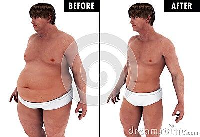 comment perdre du poids quand on est diabetique type 1 word
