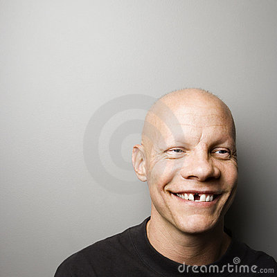 Free Man With Missing Tooth. Stock Images - 2846364