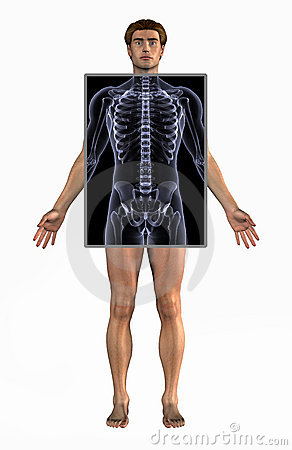 Man with X-Ray - with clipping path