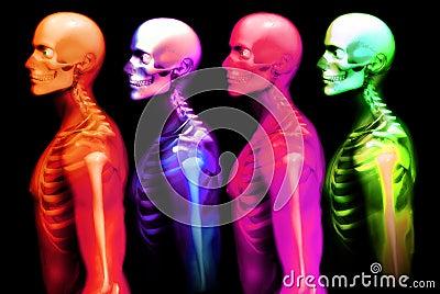 Mann-Knochen 2