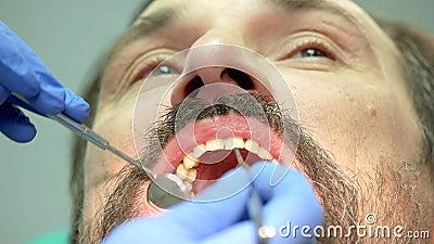 Mano del dentista con lo strumento archivi video