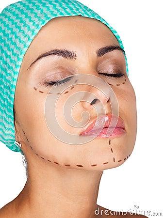 Markierung für kosmetische Schönheitsoperation