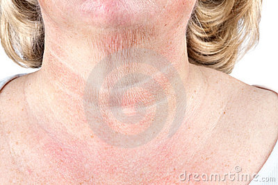 Mature woman s aging skin