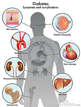 taux de glycémie diabète de type 1