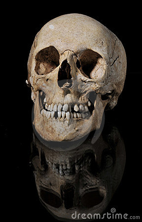 medical model of the human skull