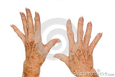 Medical: Rheumatoid Arthritis and Liver Spots