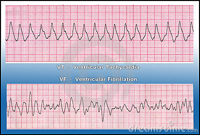 Medicine - Deadly Heart Arrhythmia - VT & VF