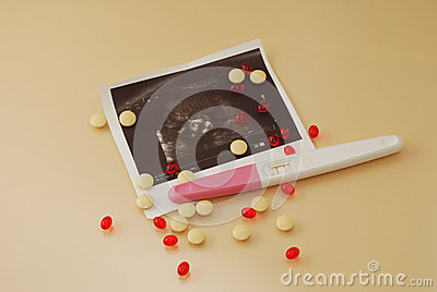Medicine pills, vitamins and ultrasound film of  fetus with pregnancy test on a beige background