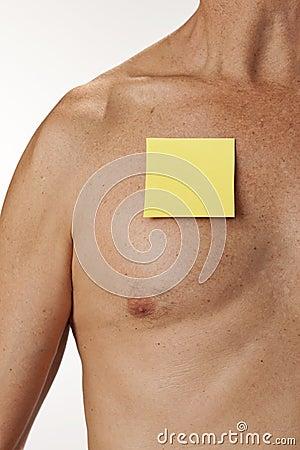 Medicinsk anmärkningsstolpe för man