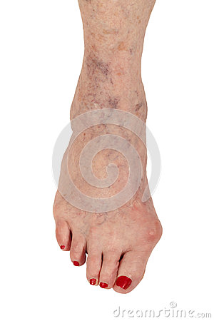 Medizinisch: Rheumatoide Arthritis, Hammer-Zehe und Krampfadern