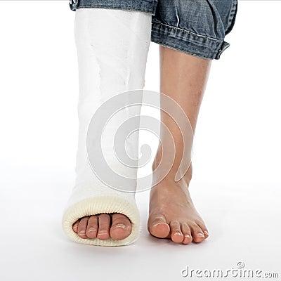 Menina com um pé quebrado