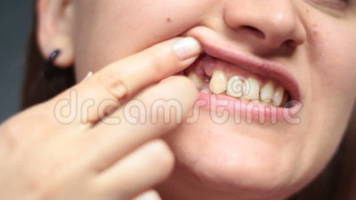 A menina que aponta com dedos fere-se após a extração do dente vídeos de arquivo