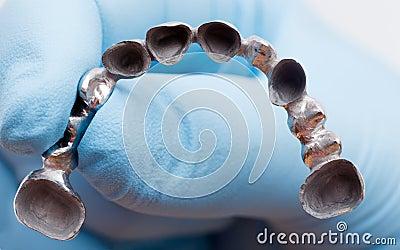 Metal Basis Denture
