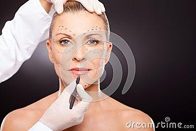 Mid age plastic surgery