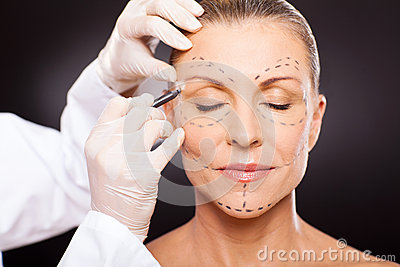 Middle aged plastic surgery