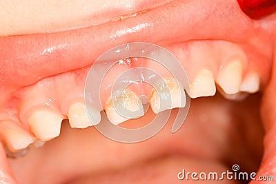 Mjölka tänder