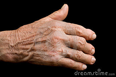 Mão velha com artrite