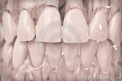 Model teeth in plastic gums
