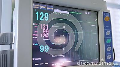 Moderner Monitor zeigt Herzfrequenz eines Patienten während der Chirurgie an stock video footage