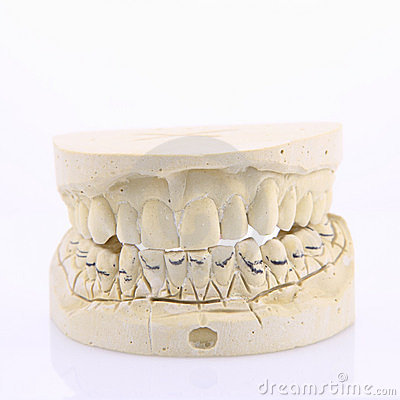 Mold of of human teeth