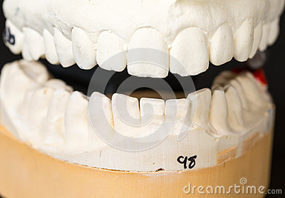 Mold of teeth taken for orthodontics