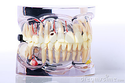Moulage of dental problems expaind
