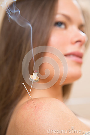 Moxibustion acupunture needles heat on woman