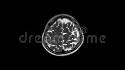 Mri και mrv του εγκεφάλου: ιστορία που μια περίπτωση παρουσίασε με την αδυναμία και η δυσαρθρία, στον αποκλεισμό κτυπά απόθεμα βίντεο