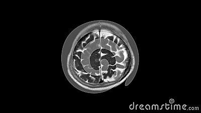 Mri и mrv мозга: история случай представленный со слабостью и дизартрией, для того чтобы управлять вне ходом акции видеоматериалы