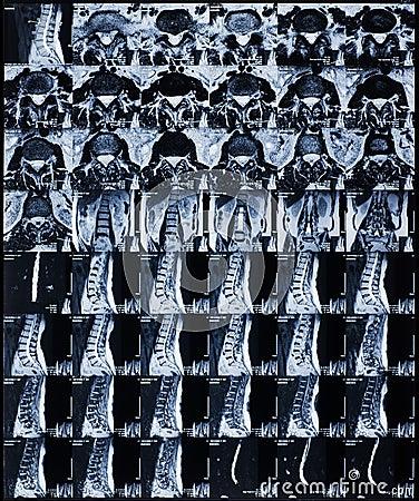 Free MRI Royalty Free Stock Images - 29361079
