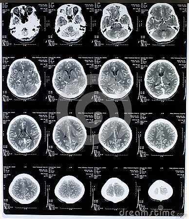 MRI-Bild des Gehirns