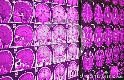 MRI of brain, MR
