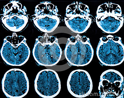 MRI Gehirn-Scan