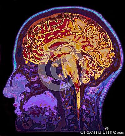 Free MRI Image Of Head Showing Brain Royalty Free Stock Photos - 63218218