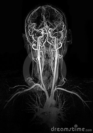 MRI image show head and neck vessel