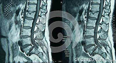 MRI Lumbar Spine
