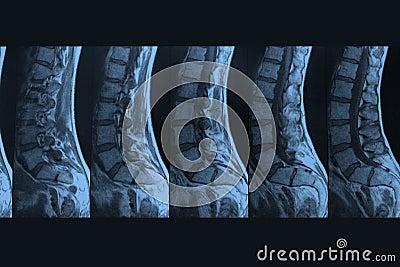 MRI-Picture