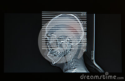 MRI Scan of head of human show head injury