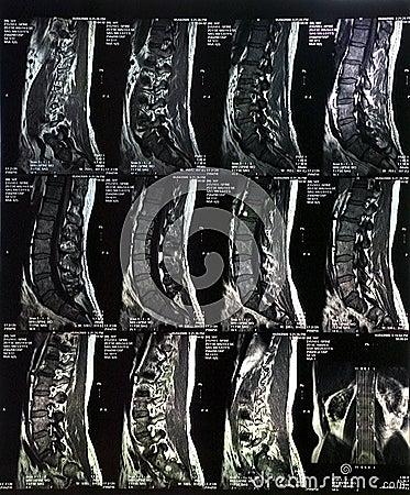 MRI Scan Spine