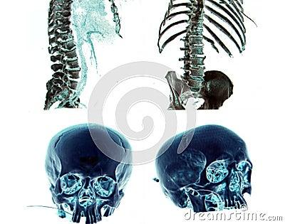 κεφάλι σωμάτων msct