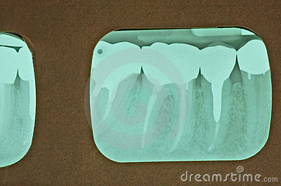 Multiple Root Canals