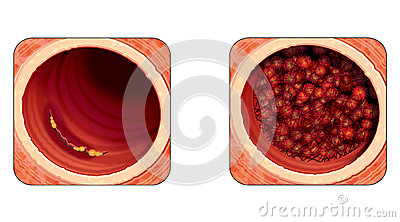 Mural thrombus stock photography image 25621312 for Mural thrombi