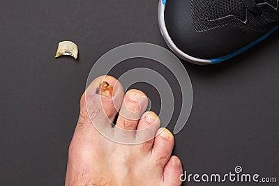 Nail injury