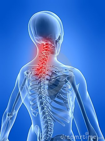 Free Neck Inflammation Stock Photography - 4418332