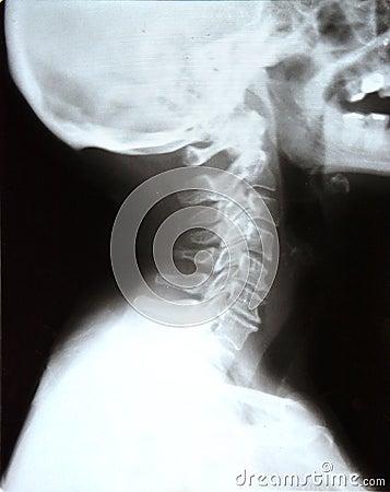 Neck skull xray (x-ray) Stock Photo