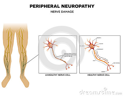 causes of neuropathic pain in feet