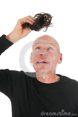 New hair for bald man