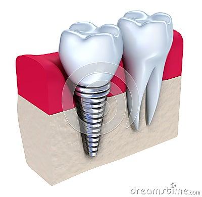 骨头牙插入物被种入的下颌